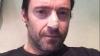У актера Хью Джекмана нашли рак кожи