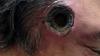 Мазь для кожи образовала в голове австралийца дыру