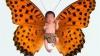 В поддержку детей с синдромом «бабочки» организован благотворительный концерт