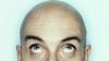 Иммунитет помогает восстанавливать потерянные волосы