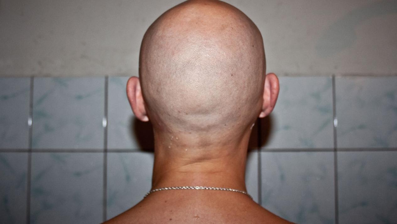 фото лысых мужчин со спины выделялся обычные