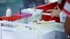 Врачи призывают молдавских граждан к вакцинации от полиомиелита