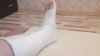 Сотрудница бельцкого предприятия сломала на работе обе ноги