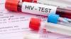 Более половины ВИЧ-инфицированных граждан Молдовы поздно узнают о своем диагнозе