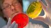В Одессе увеличилось количество заболевших кишечной инфекцией