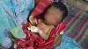 В Бангладеш родился ребенок-старик (ВИДЕО)