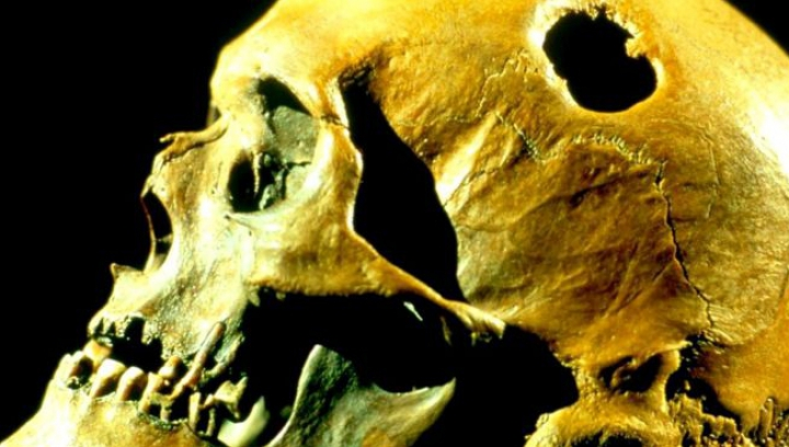 Зачем наши предки проделывали друг другу отверстия в черепе