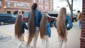 Из кишечника российской школьницы достали 50-сантиметровое образование из волос