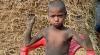 Picstory: Редкая болезнь превращает 8-летнего мальчика из Бангладеш в камень