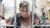 Видео: Раненный в голову бразилец гулял по больнице, изображая зомби