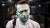 Навальный заявил об утрате 80% зрения одним глазом после нападения с зеленкой