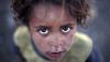 В ВОЗ сообщили о росте числа жертв вспышки холеры в Йемене