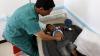 В Йемене число жертв вспышки холеры превысило 850 человек
