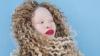 Подвергавшаяся издевательствам из-за альбинизма африканка стала моделью