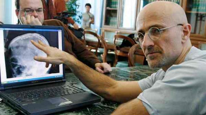 Хирург, который готовит пересадку головы, успешно восстановил спинной мозг крысы