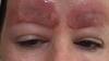 Женщина выложила в Facebook фото татуажа, после которого у неё отвалились брови