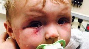 """Судья освободил мать, жестоко избивавшую дочь, заявив, что """"до свадьбы заживёт"""""""