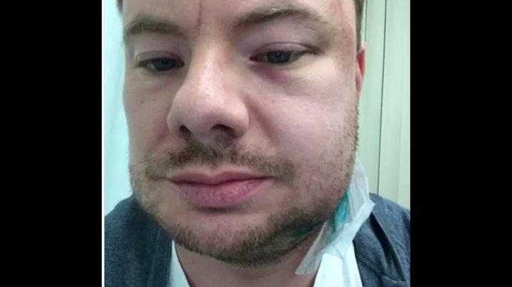 DJ Smash жестоко избили в одном из ночных клубов Перми: видео