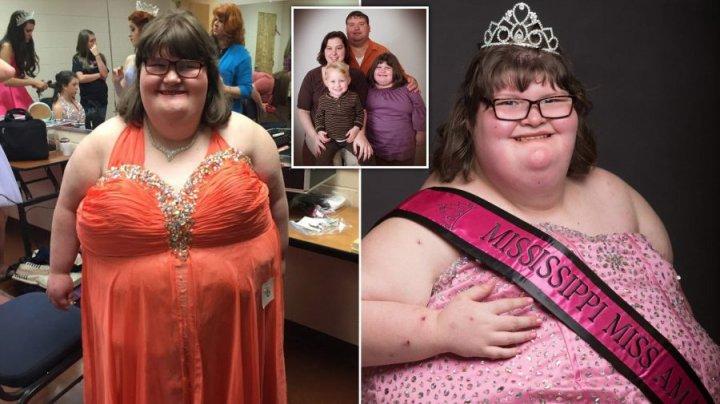 Вечно голодная девочка стала королевой красоты: видео