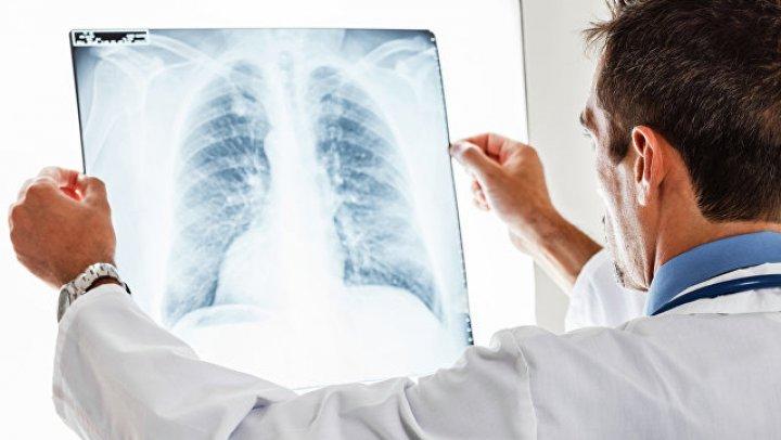Внутри рака легких нашли недоразвитый организм