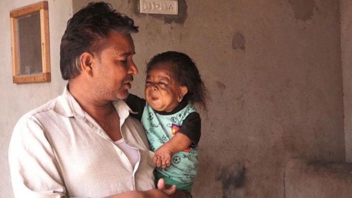 23-летний человек застрял в теле ребёнка, который не может ходить и говорить
