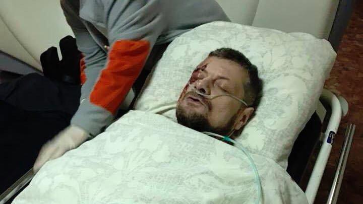 Глава СБУ сообщил о раскрытии покушения на Мосийчука
