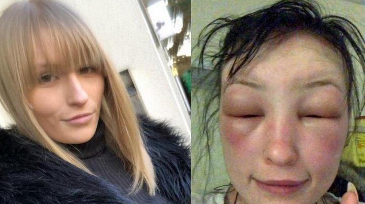 21-летняя девушка чуть не умерла накануне дня рождения после того, как покрасила волосы дома