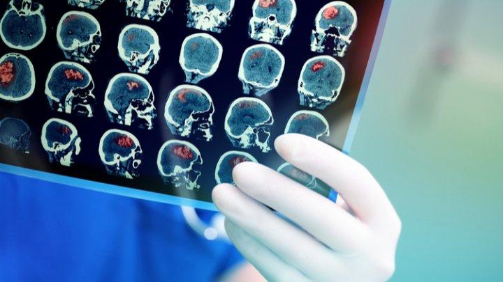 Ученые: инсульт вызывает больше проблем со здоровьем, чем принято считать