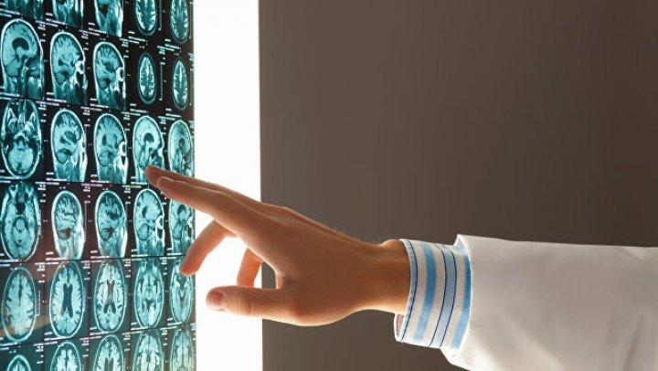 Учёные выяснили, почему у людей увеличился мозг