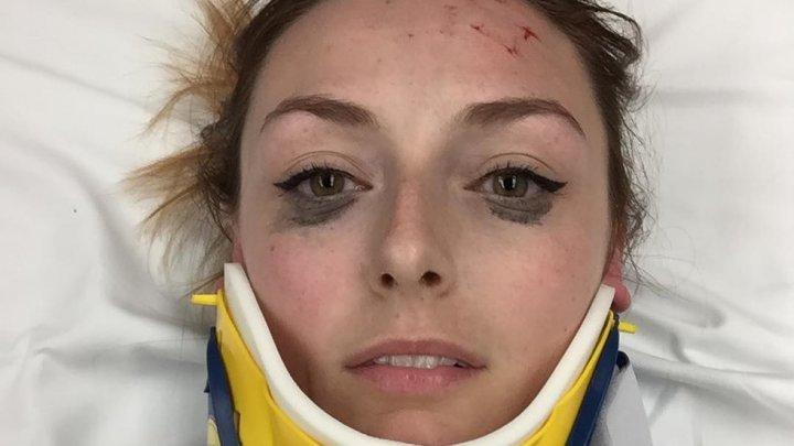 Девушка, выжившая в ДТП, нашла в себе силы похвастаться подводкой для глаз