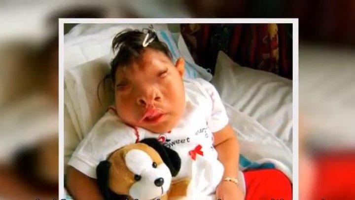Родившаяся без части мозга девочка прожила 10 лет