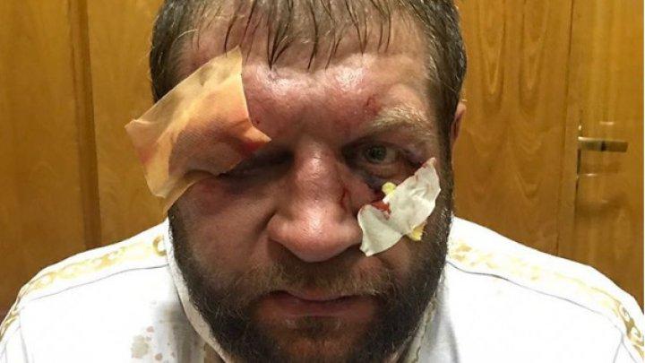 Александр Емельяненко показал разбитое лицо после боя с Тони Джонсоном
