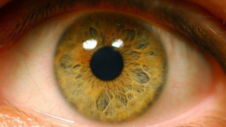 Ученые вырастили сетчатку человеческого глаза