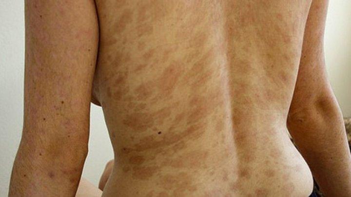 Антибиотик вызвал ужасные ожоги на теле девушки