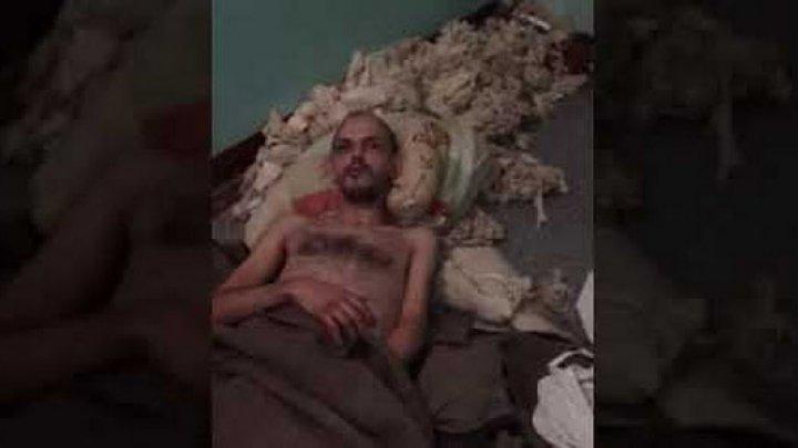 В Челябинске врачи бросили пациента с трепанацией, оставив на полу среди мусора (видео)