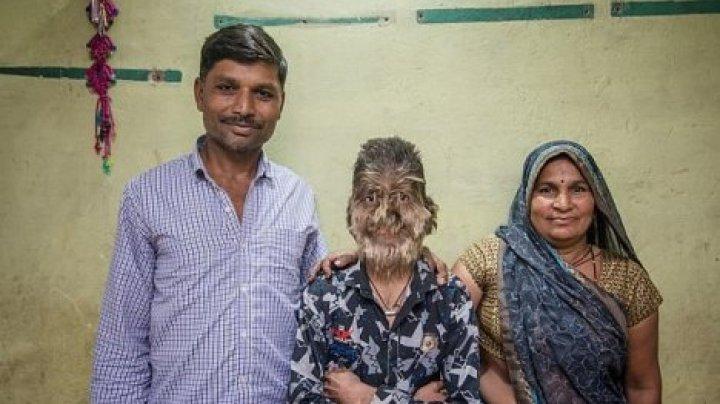 """Индийский школьник из-за редкой болезни превратился в """"оборотня"""""""