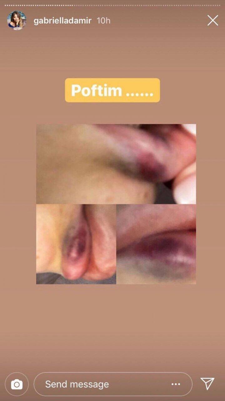 В кишиневском салоне красоты, вместо гиалуроновой кислоты, пациенткам в губы колят биополимер (фото)