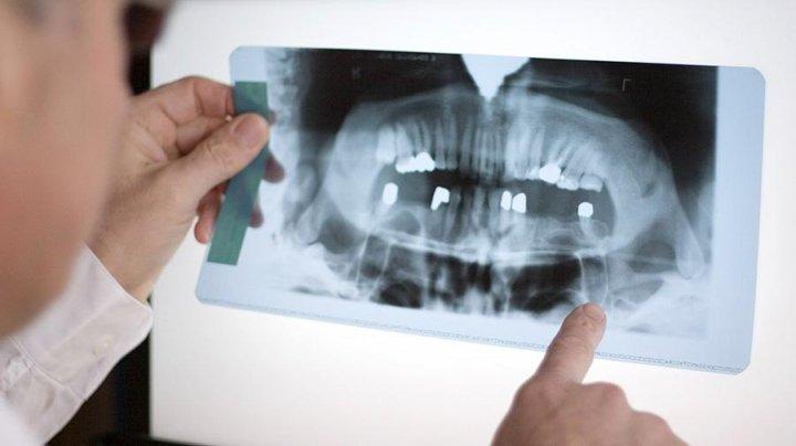 У жителя Дании в носу вырос зуб