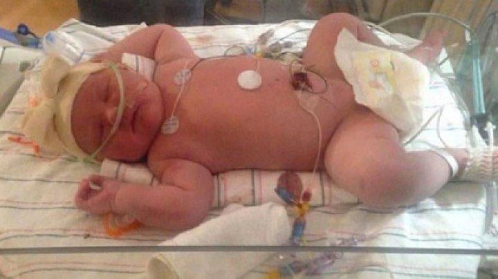 В США родился аномально крупный ребенок