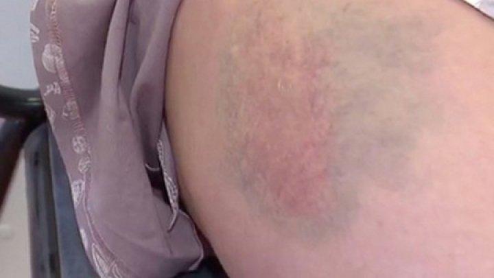 Избили ногами и столкнули с лестницы: в России пьяная компания поиздевалась над беременной