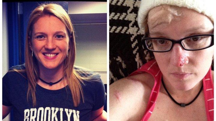 86 операций за 20 лет: Девушка показала, что стало с её кожей из-за солярия