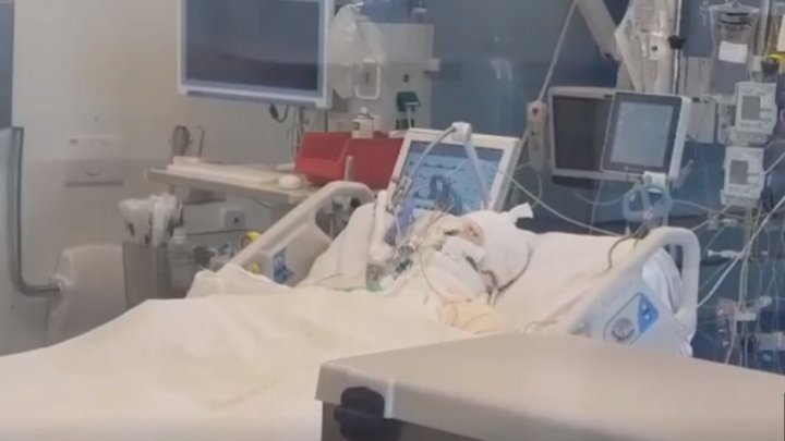 Гражданину Молдовы нужна пересадка кожи после несчастного случая в Бухаресте