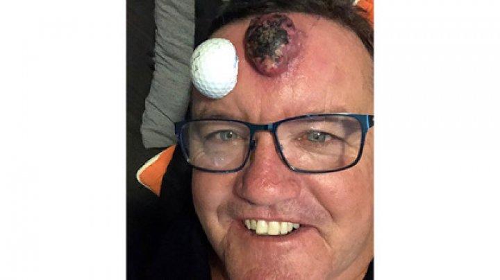 Мужчина принял опухоль за прыщ и попытался выдавить ее (фото)