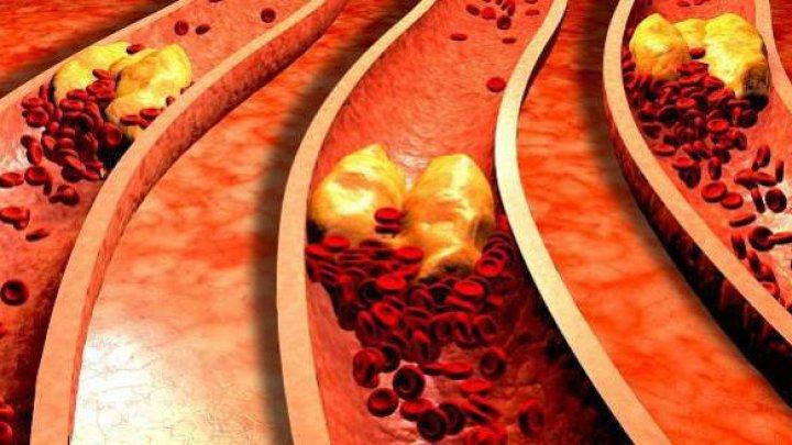 Ученые предложили лечить последствия ишемии с помощью пересадки пластов стволовых клеток