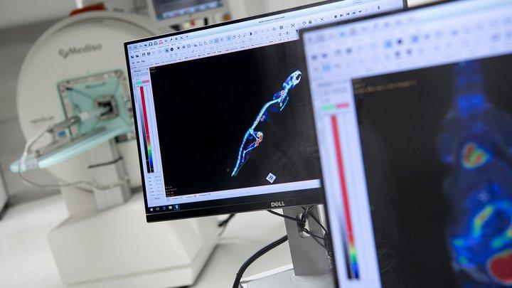 Компьютерная томография способствует раку