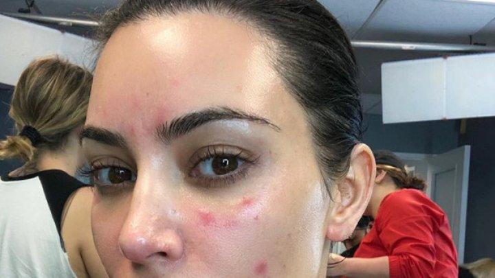 Ким Кардашьян показала пораженное болезнью лицо (фото)
