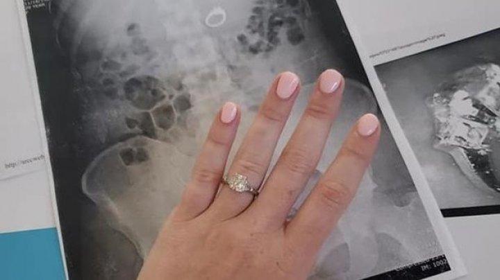 """Девушка """"съела"""" кольцо, пряча его от воров из сна (фото)"""