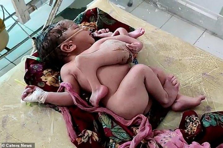 В Индии родилась девочка с четырьмя ногами и тремя руками (шокирующие фото)