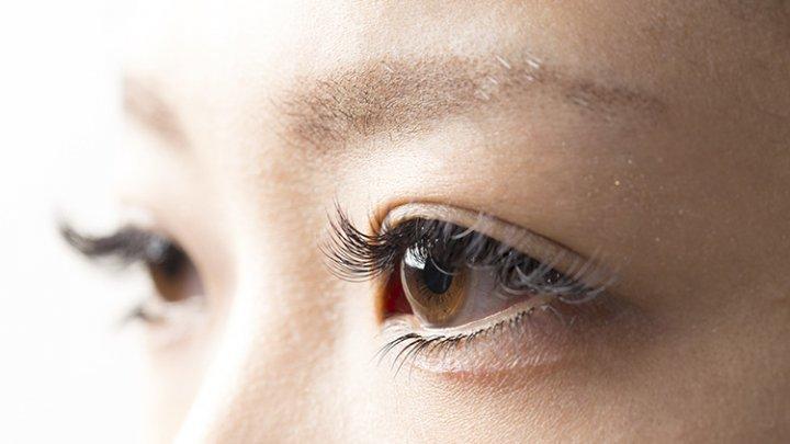 В Китае у женщины на ресницах развелись клещи