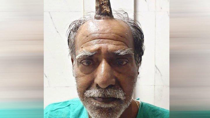 Фермеру из Индии удалили выросший посреди головы рог